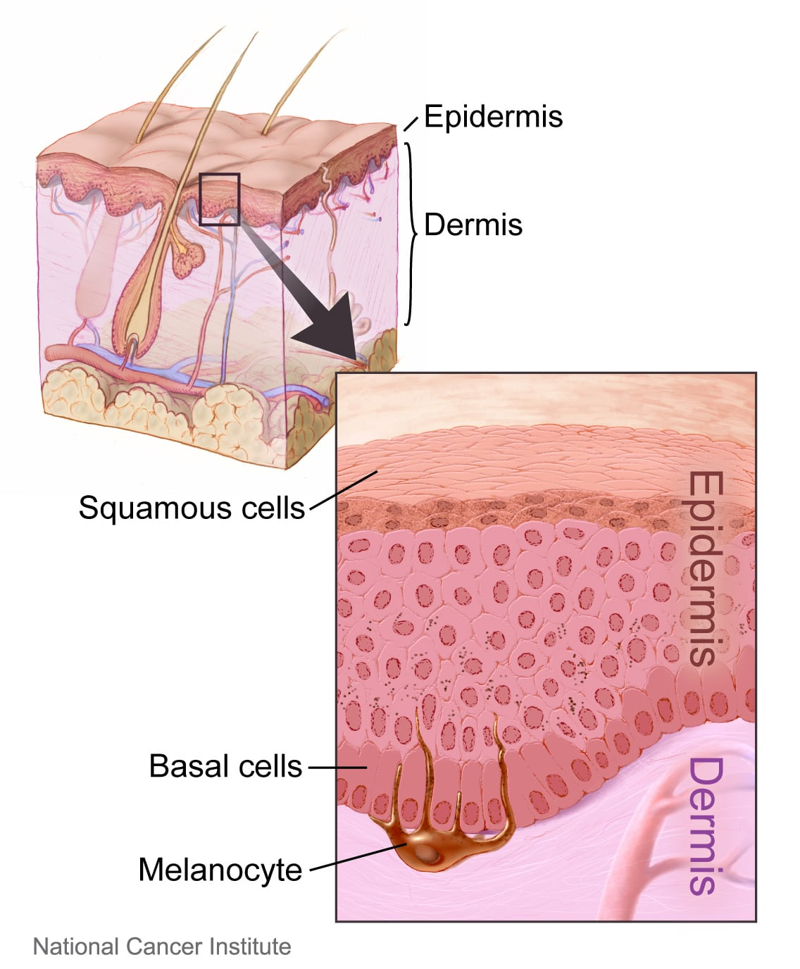 Beginning Signs Of Skin Cancer Southeast Radiation