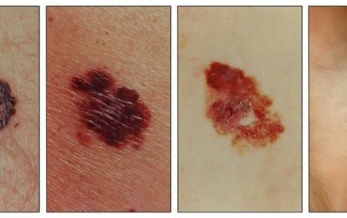 SERO-skin-cancer-examples