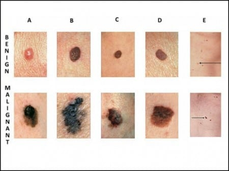 what is melanoma skin cancer? - southeast radiation oncology group, Human Body